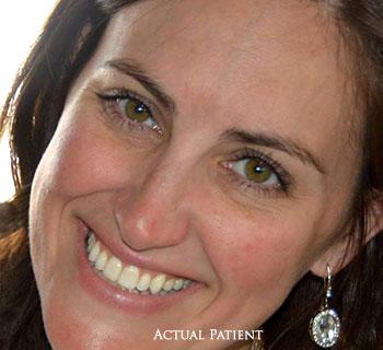 Cosmetic Dentistry Elkridge MD