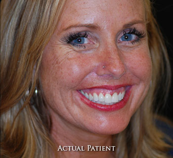 Cosmetic Dentistry Elkridge MD