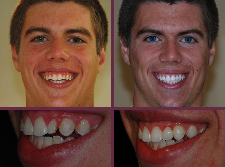 Elkridge Cosmetic Dentist